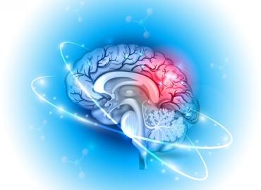 Qual a diferença entre aneurisma cerebral e AVC?