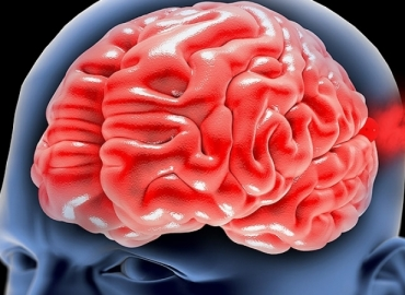 A hipertensão pode causar um aneurisma cerebral?